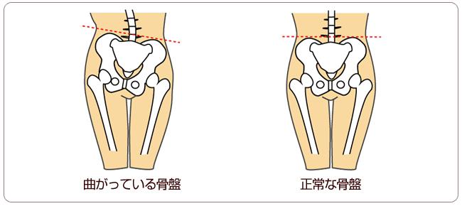 骨盤3.jpg